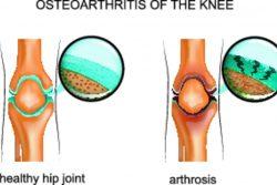Остеоартроз коленного сустава: причины, симптомы, лечение и профилактика