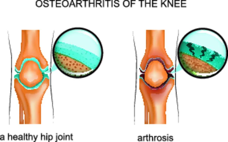 Неравномерное сужение суставной щели коленного сустава