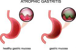 Атрофический гастрит – симптомы, диагностика и лечение