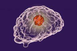 Рак головного мозга: современные способы лечения
