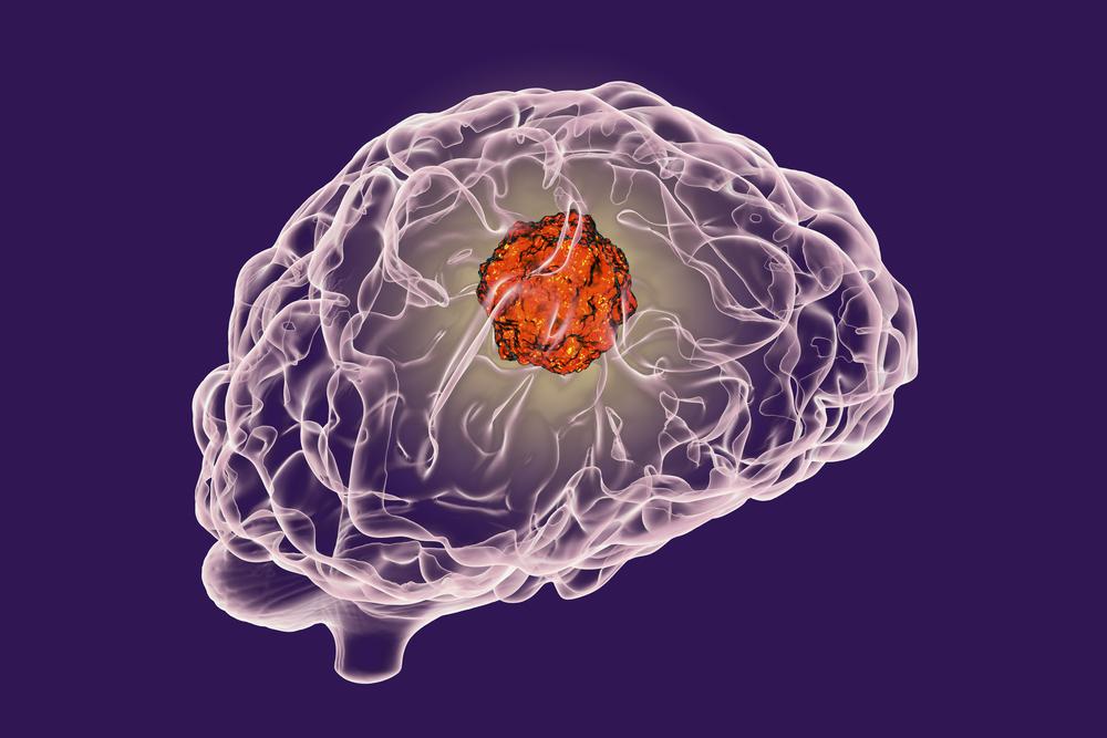 Рак головного мозга 4 стадии: симптомы, лечение