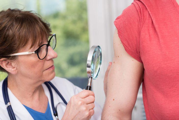 Лейкодерма витилиго - Лечение витилиго