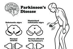 Болезнь Паркинсона: симптомы, лечение