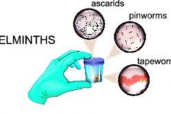 Анализ кала на яйца глист: показания, как сдавать