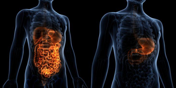 Демпинг-синдром после резекции желудка: симптомы и лечение