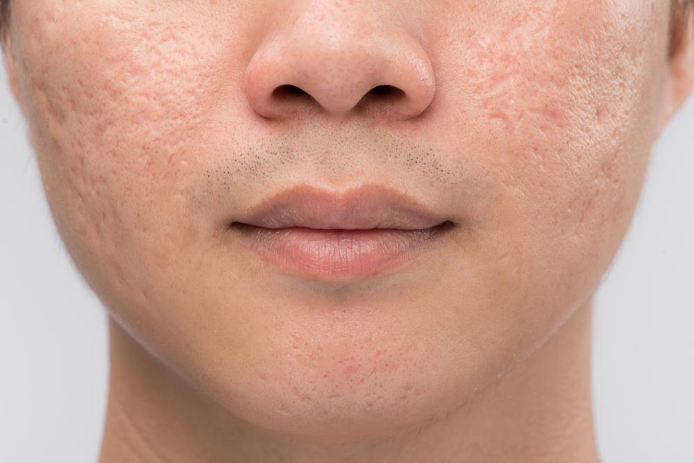 Как вывести шрамы на лице