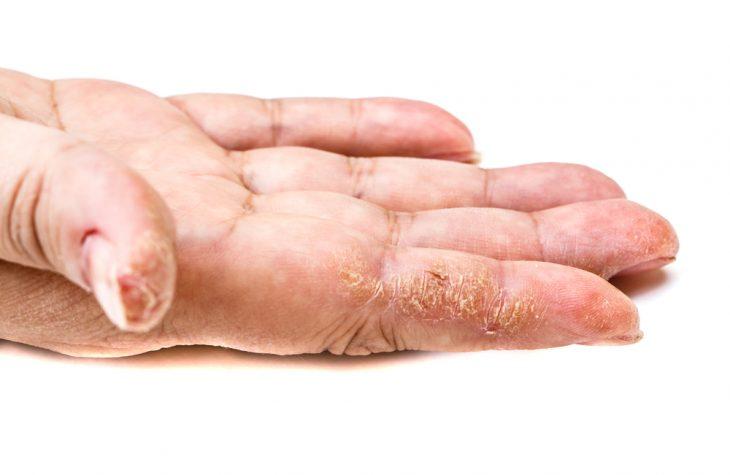 Трещины на ладонях - причины и лечение