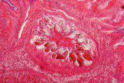 Эхинококкоз: симптомы, диагностика и лечение
