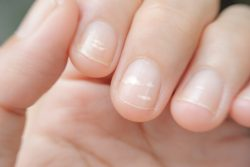 Лейконихия – белые пятна на ногтях