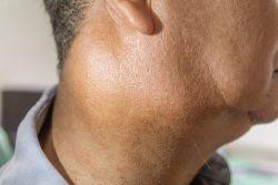 Воспаление слюнных желез: симптомы и лечение