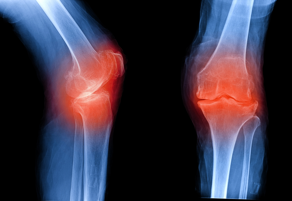 Хруст в суставах без боли причины лечение
