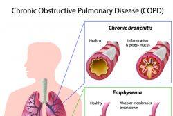 Хроническая обструктивная болезнь легких (ХОБЛ): причины, симптомы, лечение