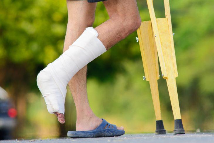 Артродез сустава коленного голеностопного лечение симптомы причины профилактика