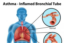 Бронхиальная астма: причины, симптомы, методы диагностики