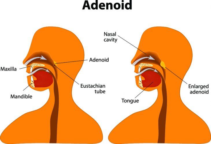 Нужно ли удалять аденоиды или нет