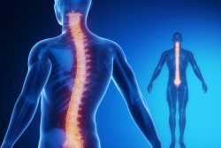 Кифоз позвоночника: симптомы и лечение