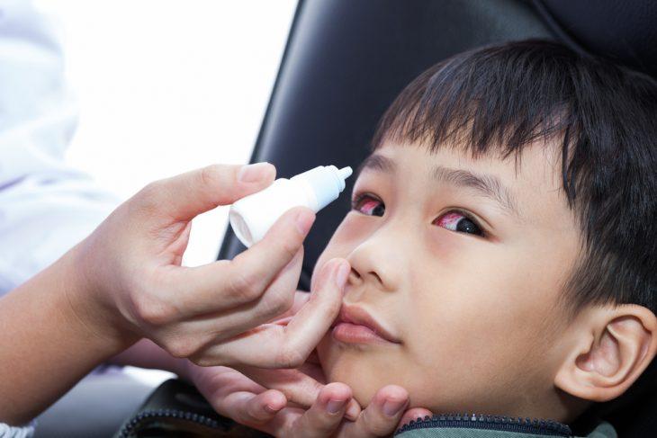 Аллергический конъюнктивит лекарства