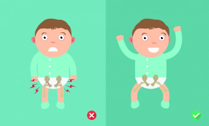 Изображение - Тазобедренный сустав детский ExternalLink_shutterstock_297948002-730x441