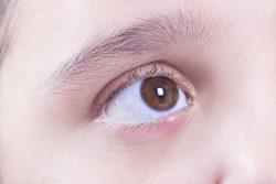 Ячмень на глазу у ребенка: как лечить в домашних условиях
