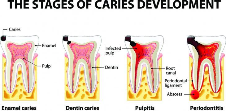 Пульпит молочного зуба — лечить или удалять?