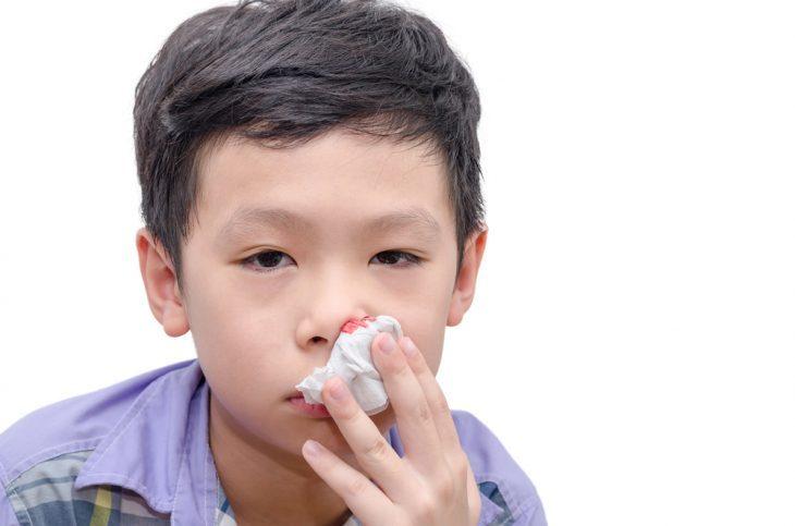 Кровь из носа у ребенка - что делать. По каким причинам может идти кровь из носа у ребенка. - Автор Екатерина Данилова