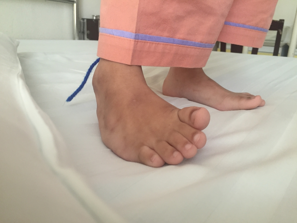 a research on the congenital foot deformity clubfoot