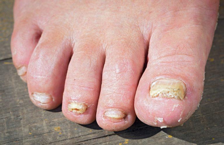Как лечить грибок стоп на ногах в домашних условиях 528