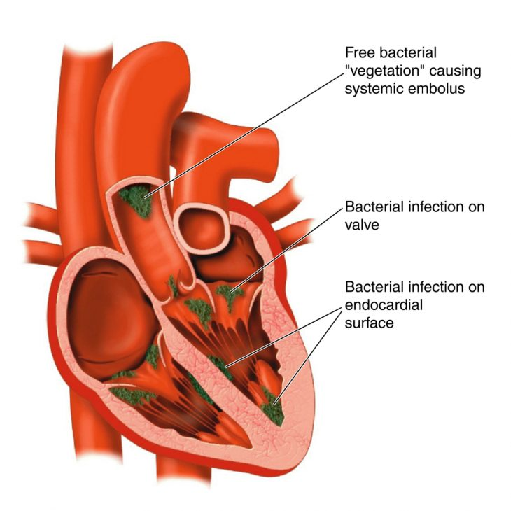 Золотистый стафилококк - симптомы, лечение, фото, как передается золотистый стафилококк