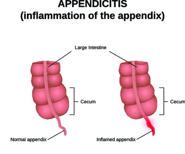 Аппендикулярный инфильтрат: причины, симптомы, тактика лечения