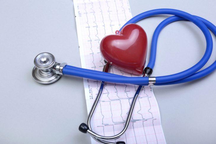 Нарушения сердечно сосудистые заболевания