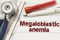 Мегалобластная анемия: причины, симптомы и лечение