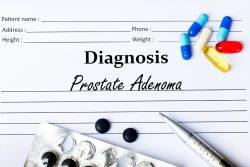 Аденома предстательной железы —  симптомы и лечение