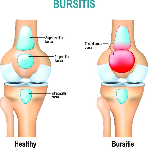 Бурсит: симптомы, лечение и профилактика