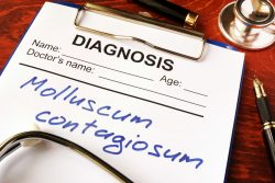 Контагиозный моллюск: причины, симптомы и лечение