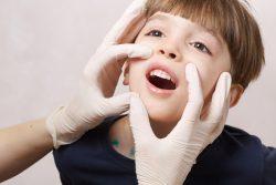 Виды стоматита у детей и взрослых