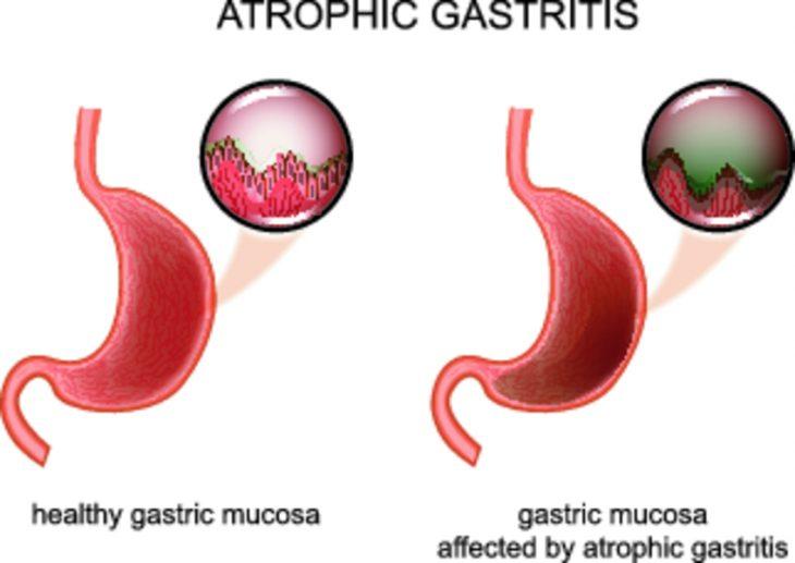 Атрофический гастрит: современные методы лечения и диагностики