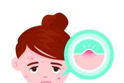 Фурункулез у детей: причины и лечение