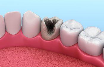 Черные ободки вокруг зубов 89