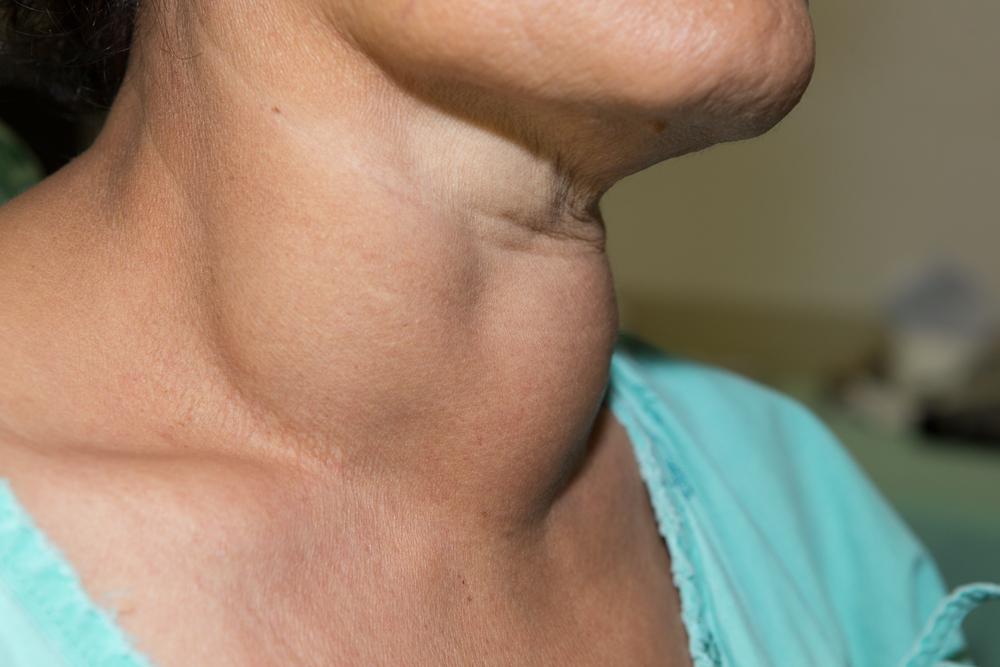 Увеличенные лимфоузлы у беременных на шее 20