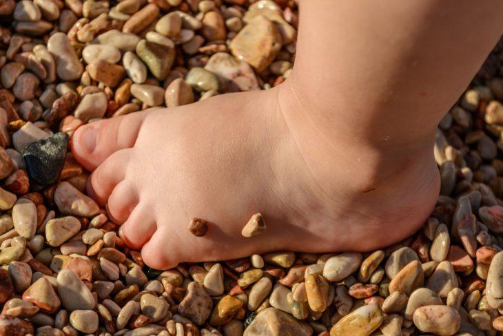Как лечить косолапость у ребенка 7 лет