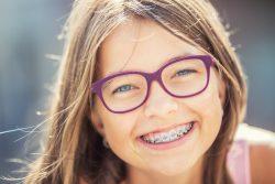 Брекет-системы для детей: рекомендации по применению и выбору