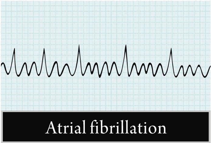 Мерцательная аритмия - фибрилляция предсердий
