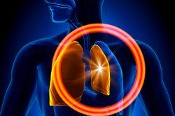 Пневмоторакс: причины, симптомы и неотложная помощь