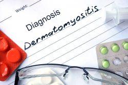 Дерматомиозит: симптомы и лечение