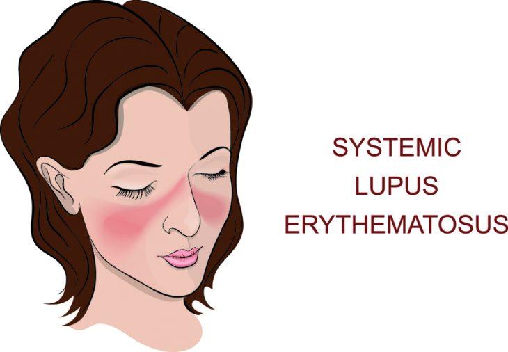 Антифосфолипидный синдром: диагностика и лечение
