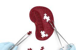 Спленомегалия селезенки: причины, симптомы и лечение