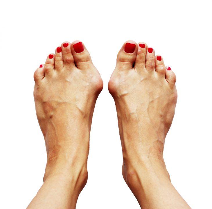 Суставов-косточка умеренный артроз коленного сустава