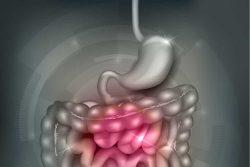 Болезнь Крона: симптомы и лечение