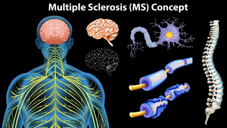 Рассеянный склероз у женщин и мужчин: симптомы, лечение и причины ...