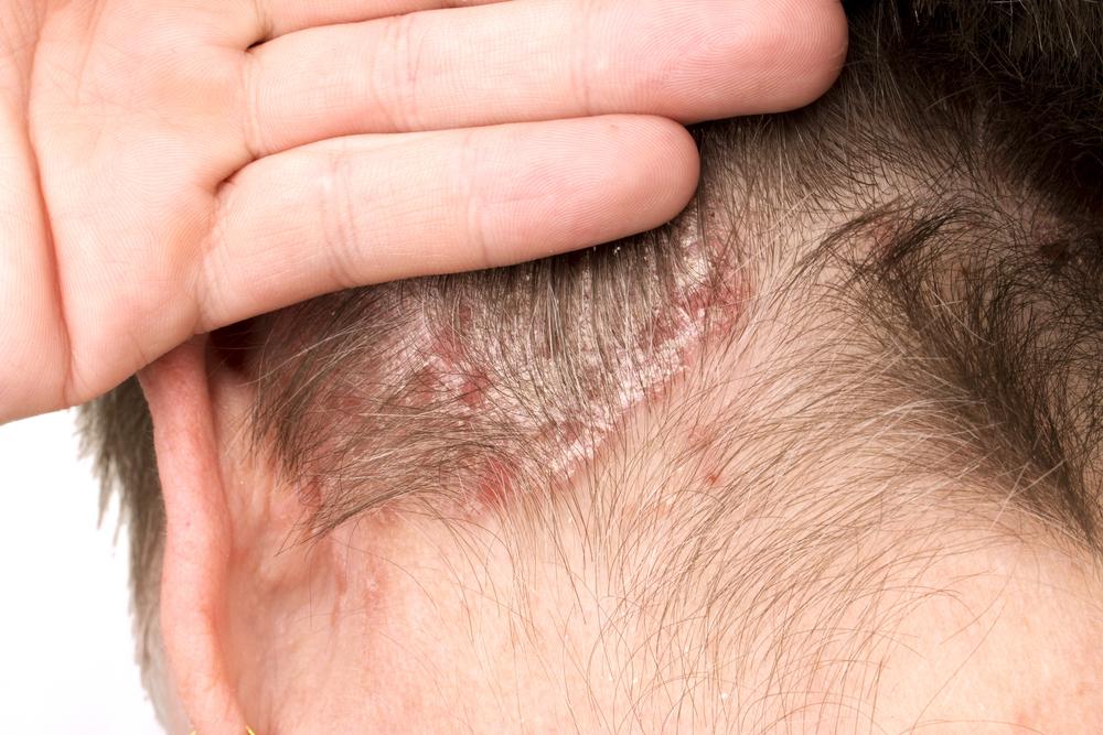 Эффективное лечение псориаза волосистой части головы